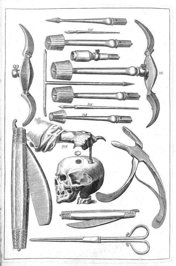 Trepanation Was The Bizarre Cure