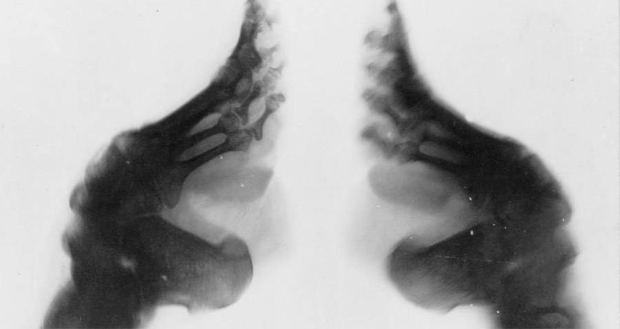 X-Ray Of Foot Binding