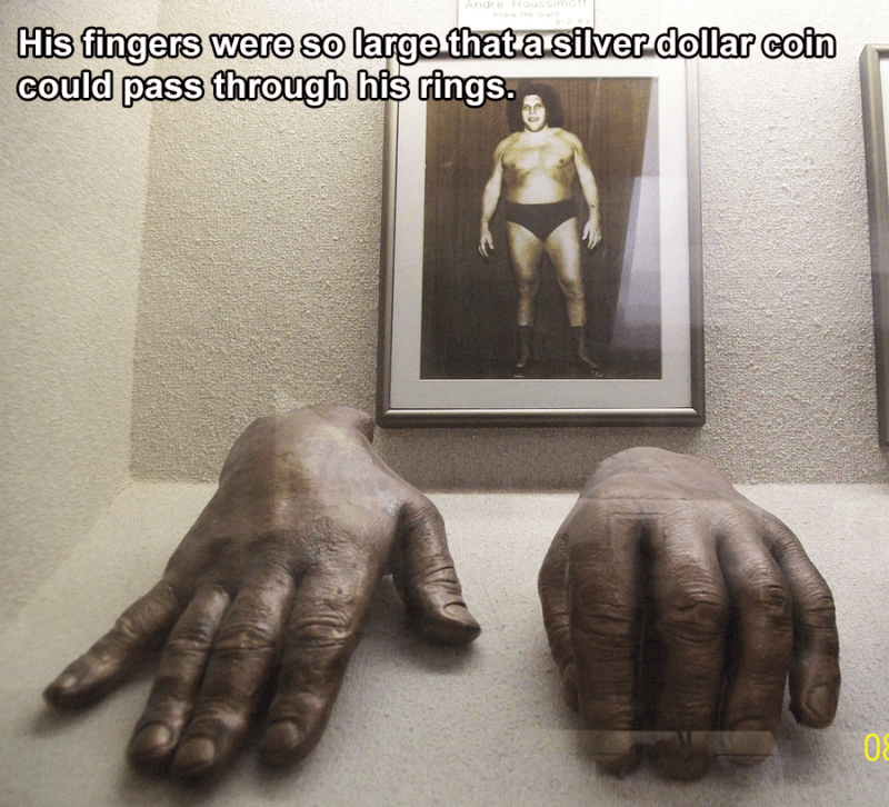 Andre The Giant's Fingers