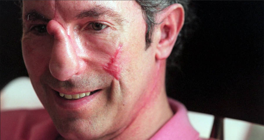 beck weathers and his incredible mount everest survival story
