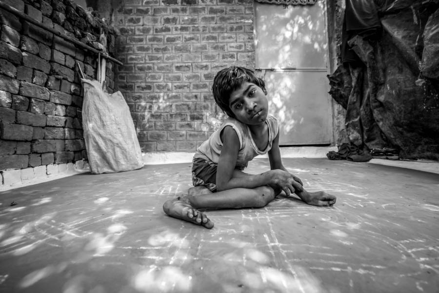 Bhopal Disaster Child