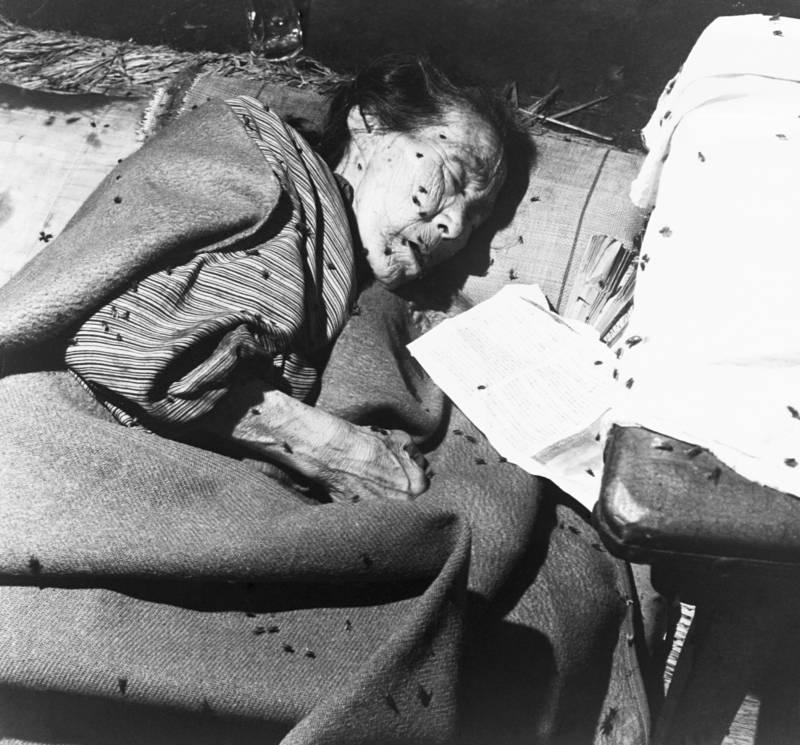 Flies Surround Hiroshima Victim