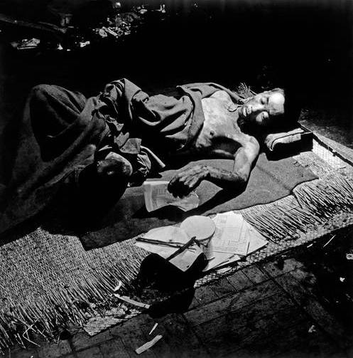 Hiroshima Victim In Makeshift Hospital