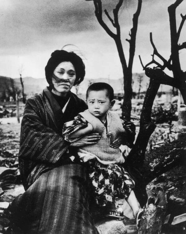 Hiroshima Aftermath Mother And Child