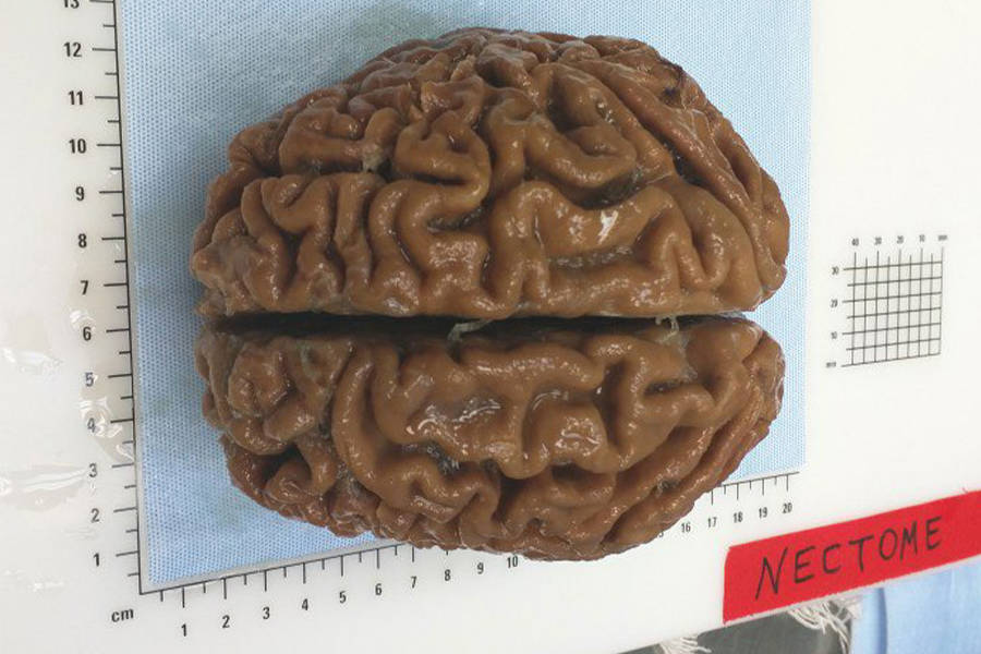 Nectome Human Brain