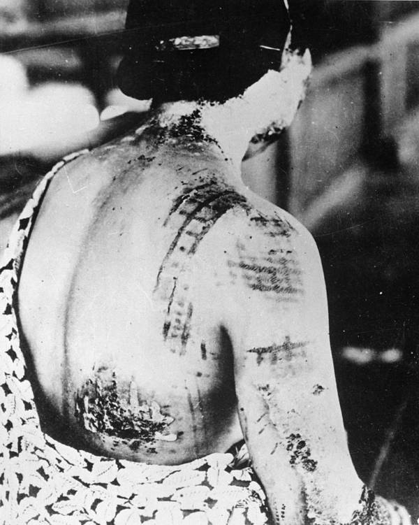 Hiroshima Victim With Skin Burns