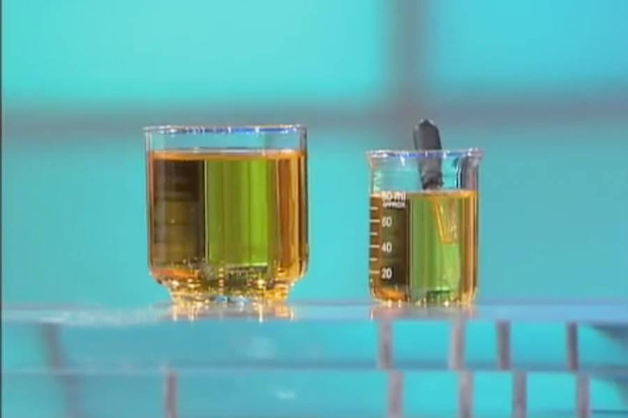 Urine Therapy Samples