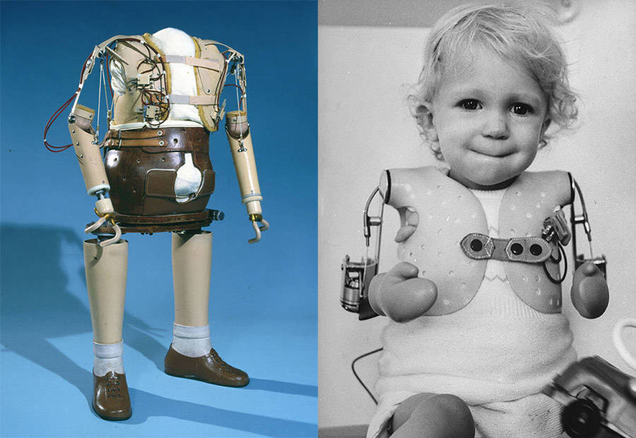 Thalidomide Children With Prosthetics
