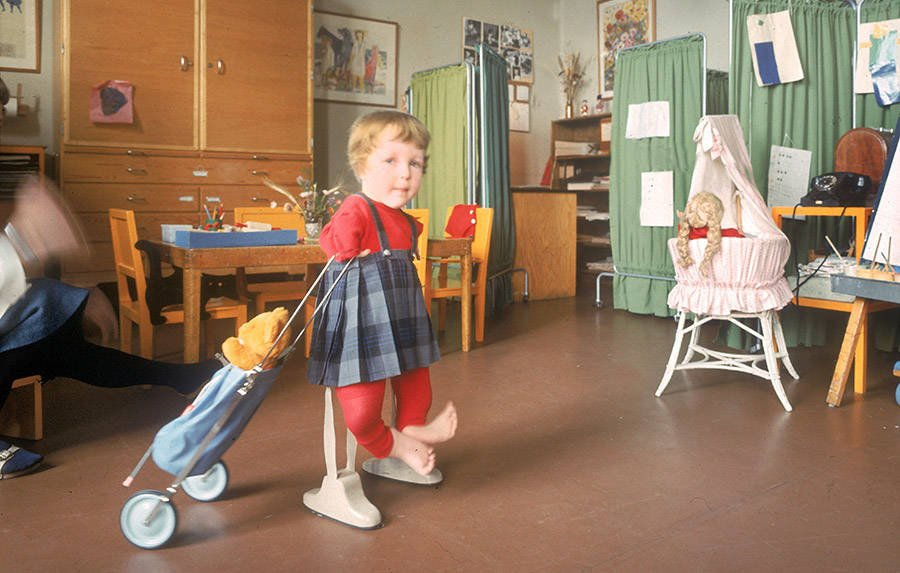 Thalidomide Child Walking