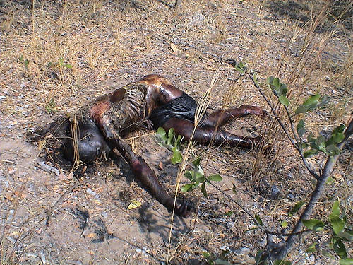 Burn Victim In Zimbabwe