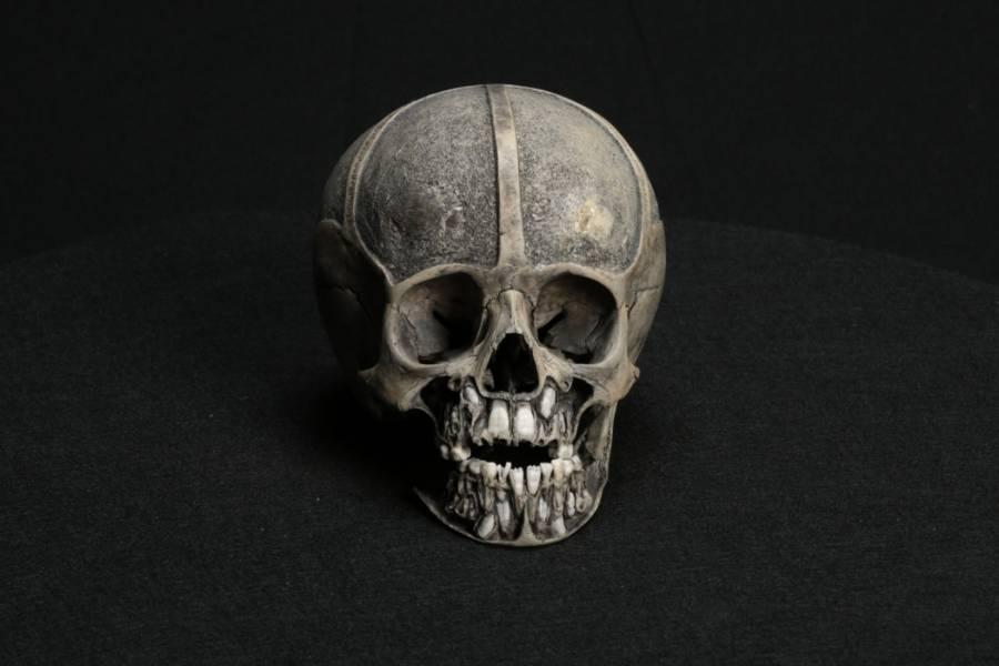 Dental Skull Model
