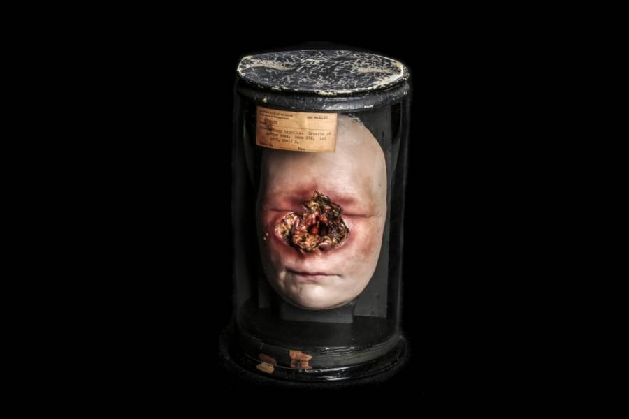 Syphilitic Face Wax Model