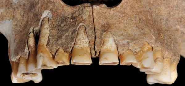 Italian Warrior Teeth