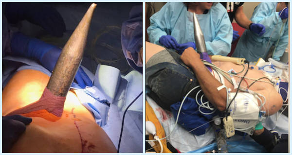 Spear Surgery Operation