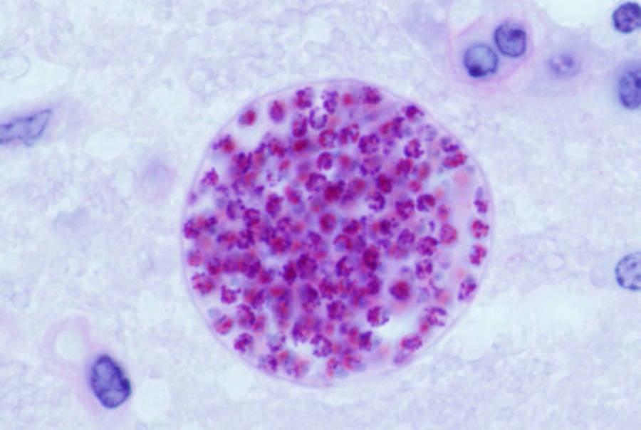 Toxoplasma Gondii Cyst