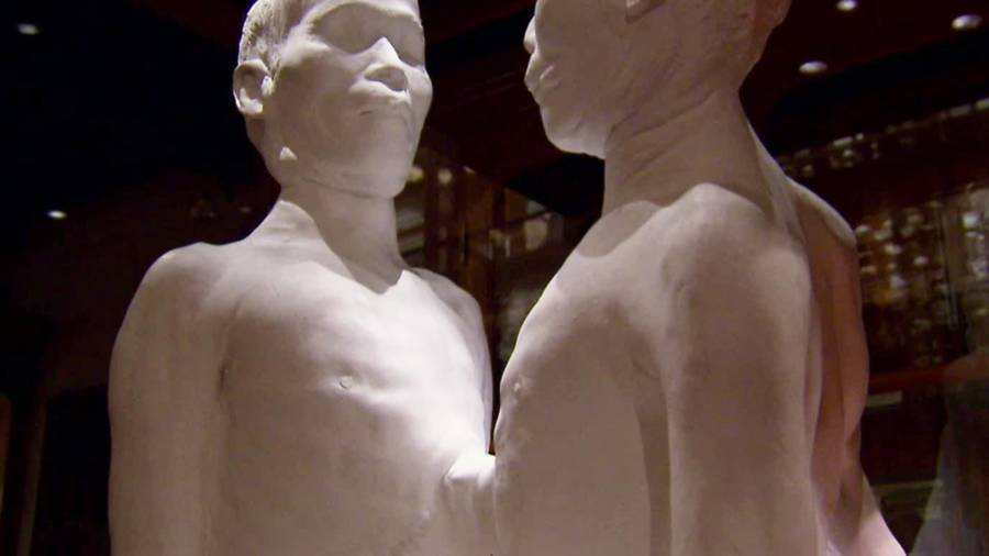 Siamese Twins At The Mutter Museum