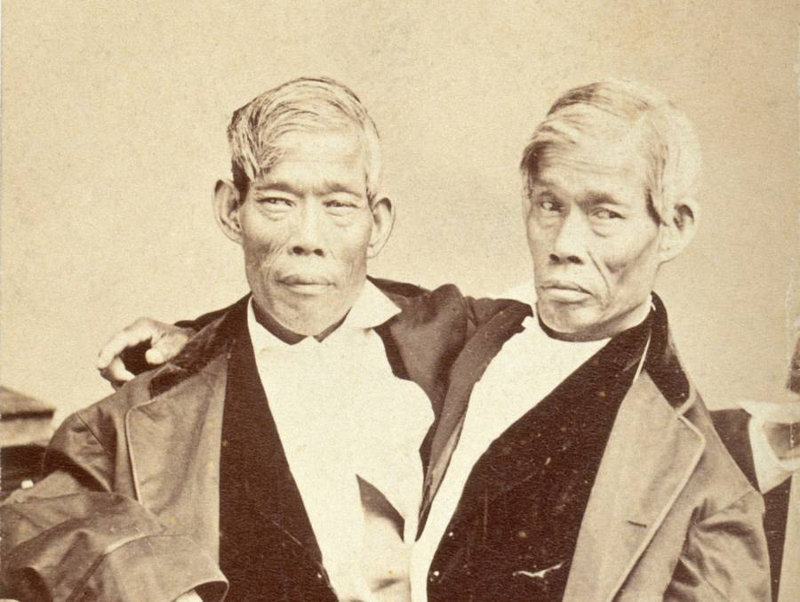 Siamese Twins Chang And Eng Bunker