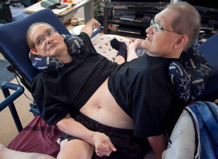 Ronnie and Donnie Are Now The Longest-Living Conjoined Twins In History