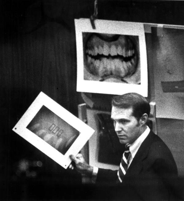 Dental Evidence Ted Bundy