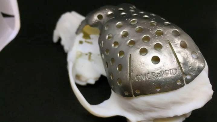 3d Printed Titanium Skull