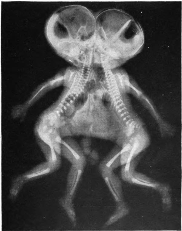Conjoined X Ray