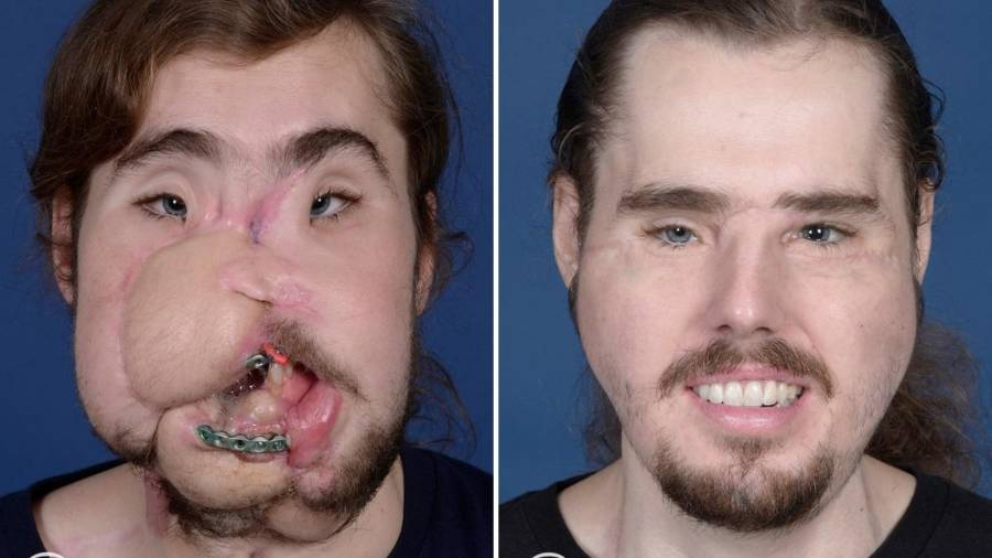 Cameron Underwood Before And After