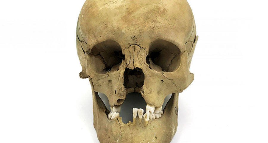 Skull With Cleft Palate