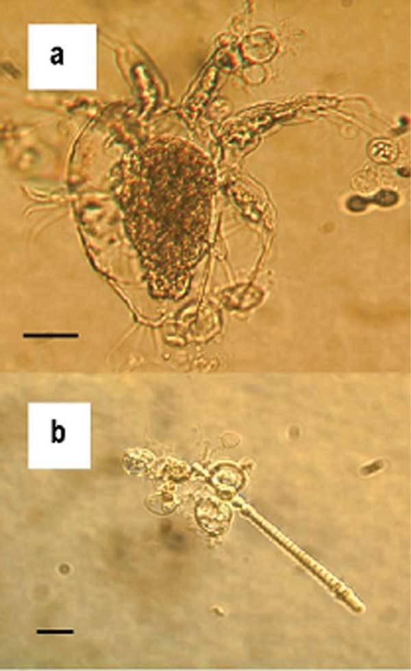 Microscope Batrachochytrium Dendrobatidis