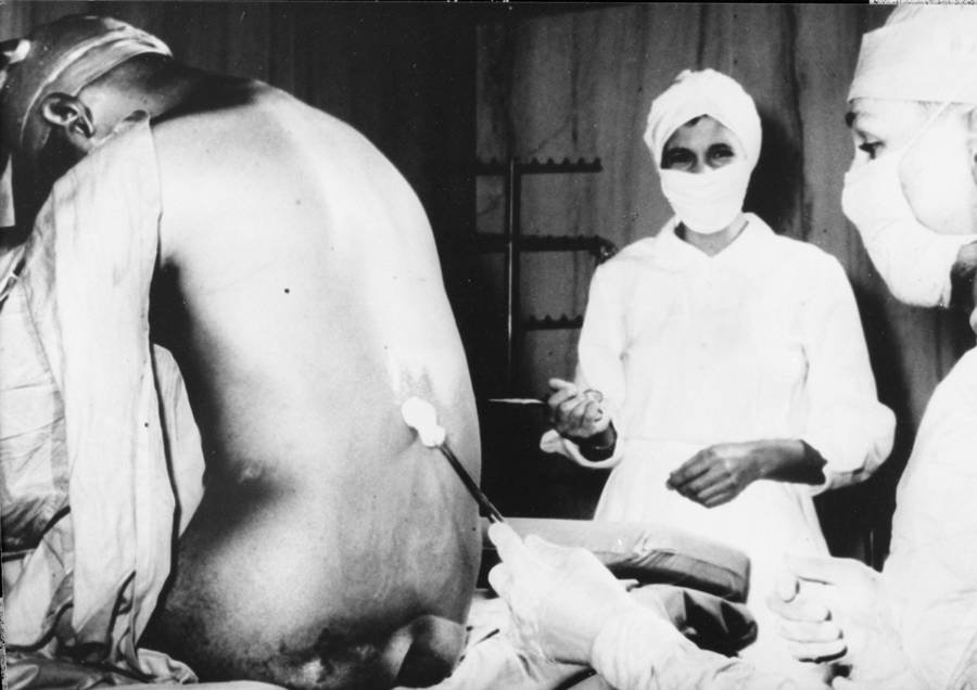 Doctors With Tuskegee Syphilis Study Patient