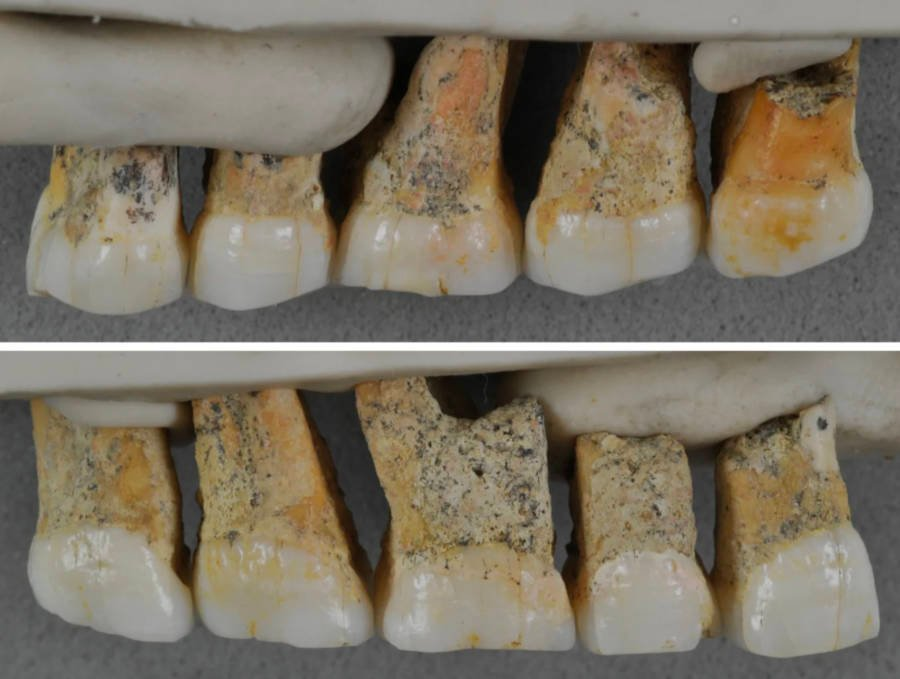 Homo Luzonensis Callao Man Teeth