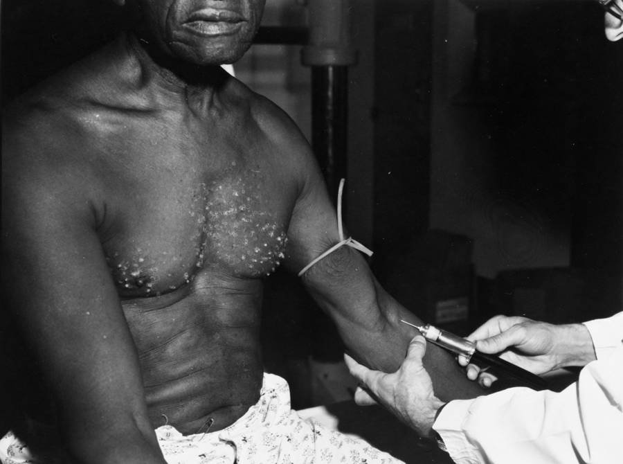 Tuskegee Patient
