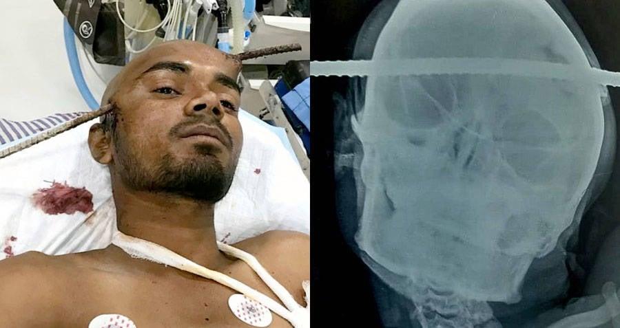 x-ray-of-sanjay-bahe.jpg