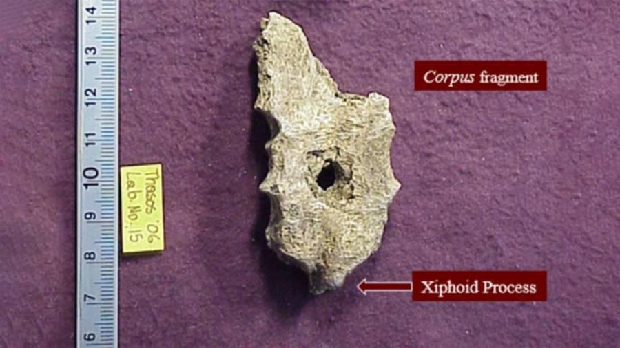 Ancient Greek Man's Sternum