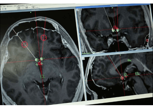 Brain Scans Of Dbs Patient