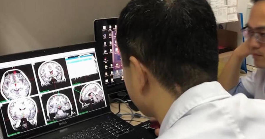 Doctors Analyze Brain Scans