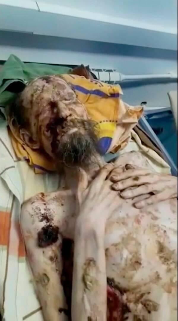 Alexander Bear Attack Victim Hospitalized