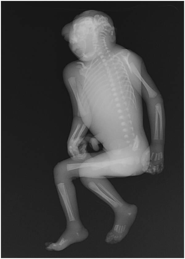 Anencephaly X Ray
