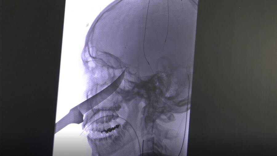 Eli Gregg Xray Of Knife In His Head