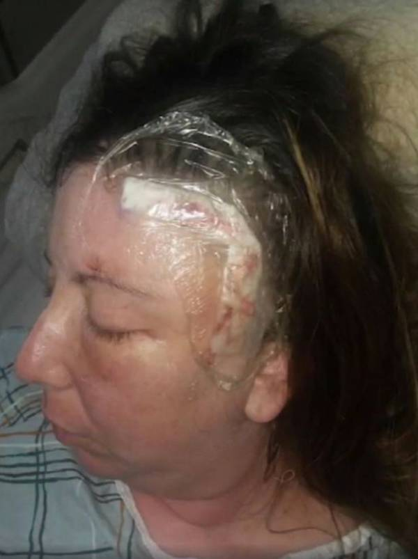 Woman With Huge Head Scar