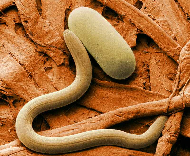 Colorized Micrograph Of Nematode Worm