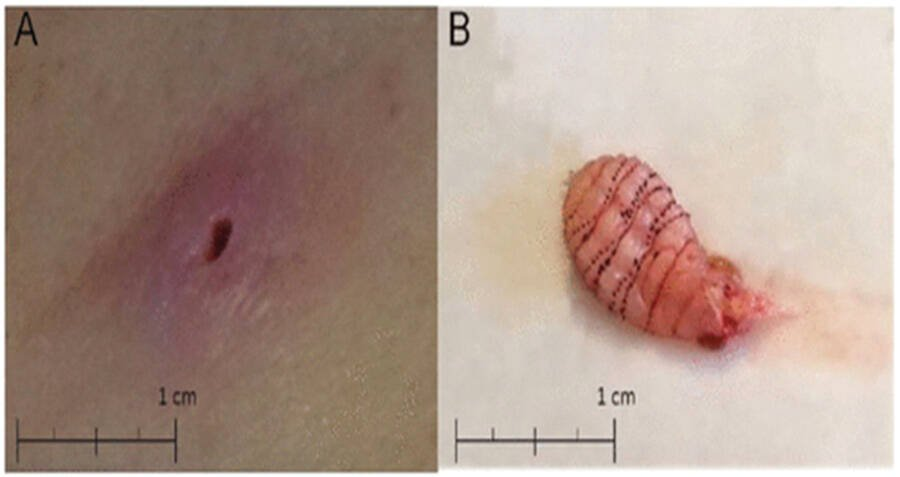 Botfly Maggot Removal