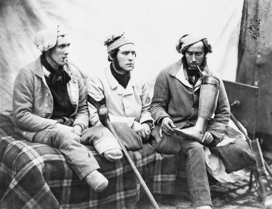 Crimean War Soldiers With Missing Limbs