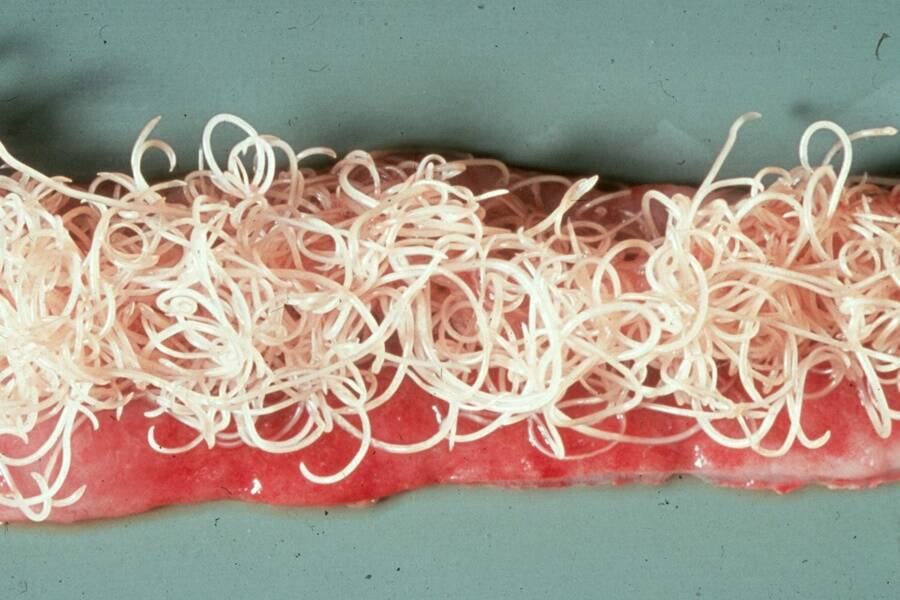 Roundworm-Infested Cat Gut
