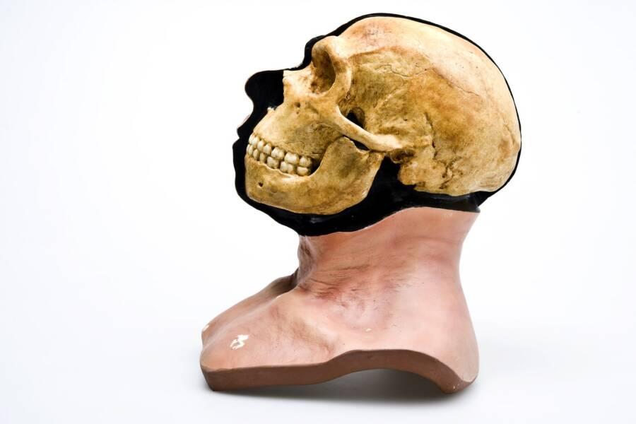 Reconstruction Neanderthal Skull In Head