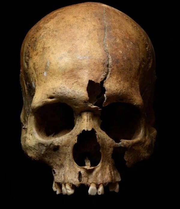 Cracked Skull Found At Yaroslavl
