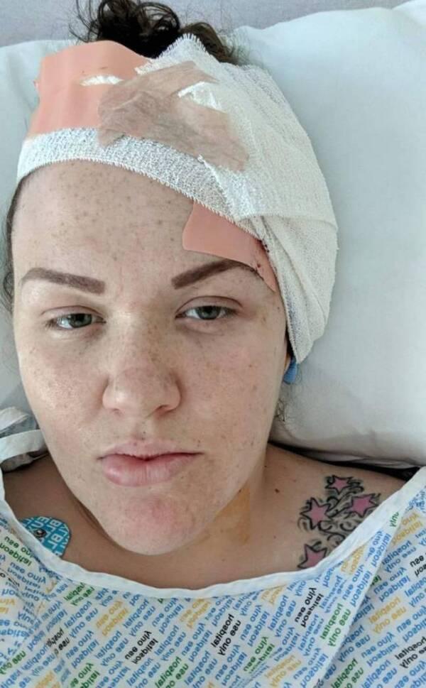 Gemma Cairns Bandaged Ear