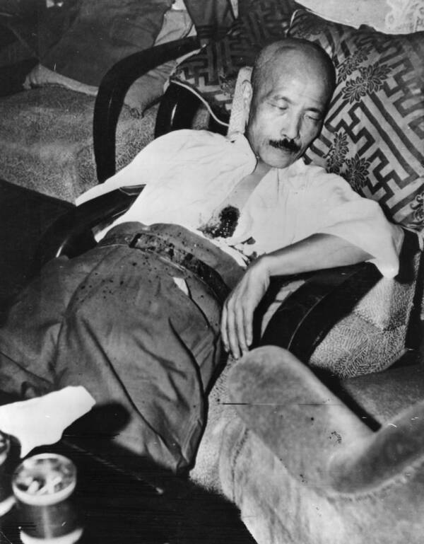 Hideki Tojo After Shooting Himself In The Chest