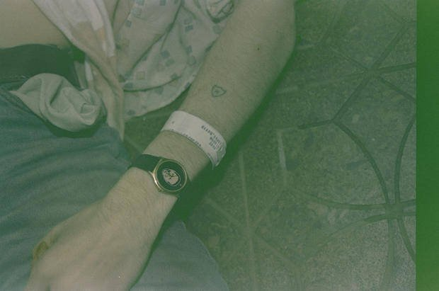 Kurt Cobain's Arm With Rehab Wristband