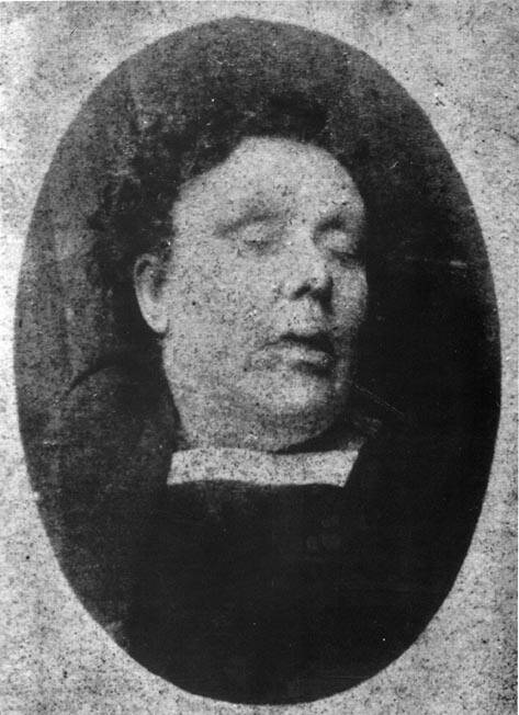 Mortuary Photograph Of Annie Chapman