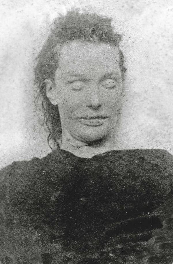 Mortuary Photograph Of Elizabeth Stride